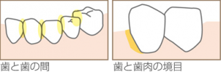 歯石、歯垢、茶渋を除去