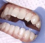 歯の色調を測定